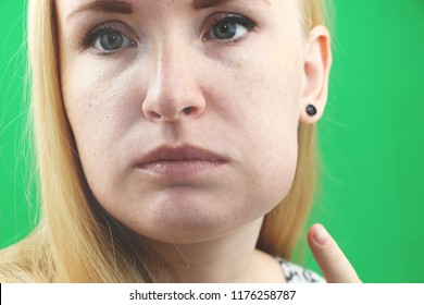 Teeth Problem. Gumboil, flux and swelling of the cheek. Closeup Of Beautiful Sad Girl Suffering From Strong Tooth Pain. Attractive Female Feeling Painful Toothache, Dental Health And Care Concept