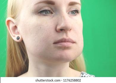 Swollen Tooth Images, Stock Photos & Vectors | Shutterstock