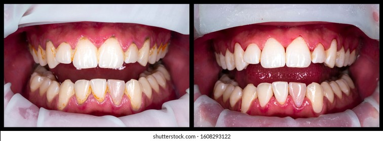 teeth proffesional deep cleaning before and after picture