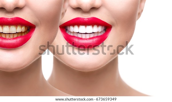 Teeth Whitening Before After Woman Teeth Stock Photo Edit Now