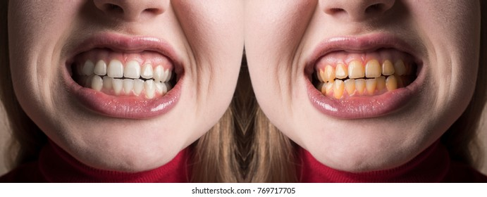 Teeth whitening at the dentist. Stomatology and dental clinic concept. Before and after. White tooth smile. White and yellow teeth, plaque cleaning on teeth. Whitening toothpaste, healthy teeth.