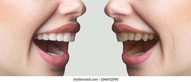 Teeth whitening, set before and after, alignment of teeth. Dental services, dentistry, dentist. White teeth, toothpaste, beautiful bite. Girl with white and yellow teeth. Curves and even