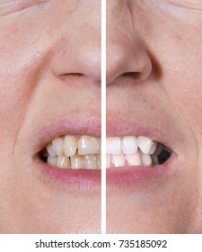 Teeth whitening from yellow to white - BEFORE and AFTER situations. Dental care