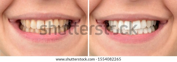 Teeth of a woman before and after dental treatment