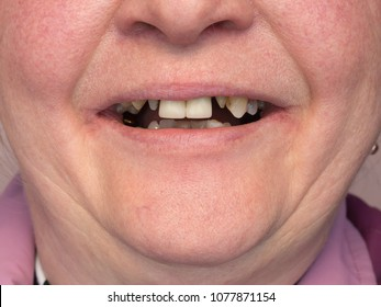 The teeth of the woman are processed and ready for prosthetics. Dental practice.