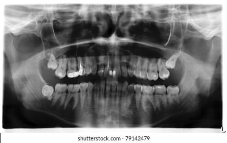 Teeth x-ray panorama