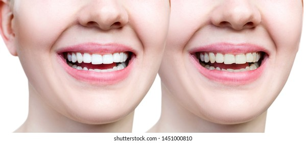 Teeth of young woman before and after whitening and buildup. Isolated on white.