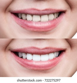 Teeth of young woman before and after whitening.