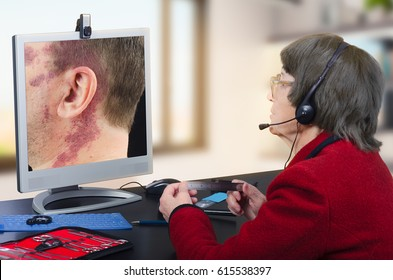 Telemedicine dermatologist in headset observes at birthmark on monitor attentively.  Virtual doctor looks at man having a big red birthmark on his face and neck either by online video chat or snapshot
