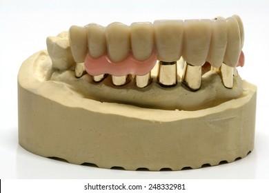 Telescopic denture images stock photos vectors shutterstock