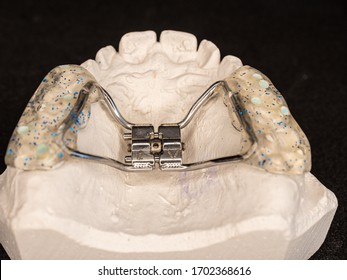 Temporary used orthodontic appliance to make young upper jaw wider. Palatal expander for the maxilla