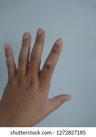 tendon cyst on finger joint