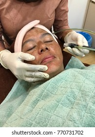 Terengganu, Malaysia, November 2017 - A woman undergo microdermabrasion treatment due to melasma problem on her face.
