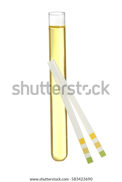 Test strips and tube with urine on white background