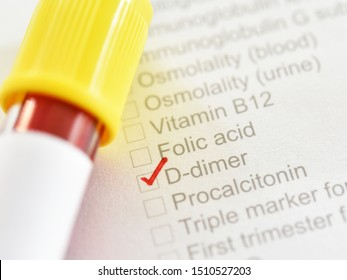 Test tube with blood sample for D-dimer test, diagnosis for disseminated intravascular coagulation