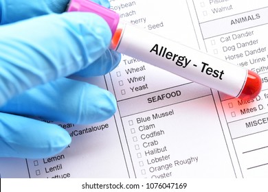 Test tube with blood sample for food allergy test
