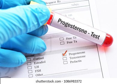 Test tube with blood sample for progesterone hormone test