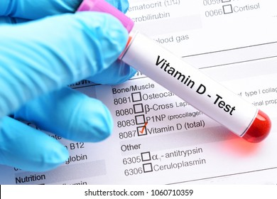Test tube with blood sample for vitamin D test