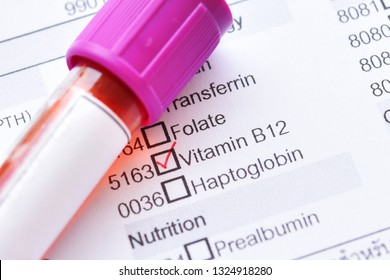 Test tube with blood sample for vitamin B12 test