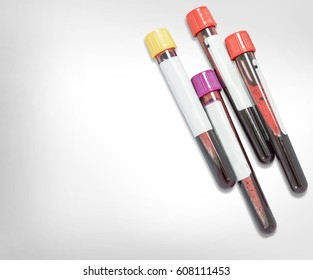 Test tubes with blood samples isolated on white background