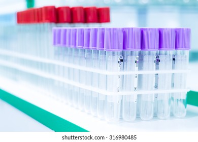 Test tubes in laboratory for  science, scientific, chemical, chemistry research or experiment. Lab medical glass equipment, medicine, biology or biotechnology liquid. Analysis pharmaceutical glassware