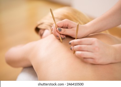 Therapist doing acupuncture to young pretty woman