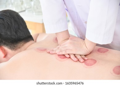 Therapist doing Tui na massage for her patient after cupping therapy finished ,Chinese alternative medicine.