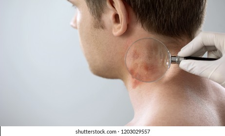 Therapist examines rash on patient neck with magnifying glass, dermatology