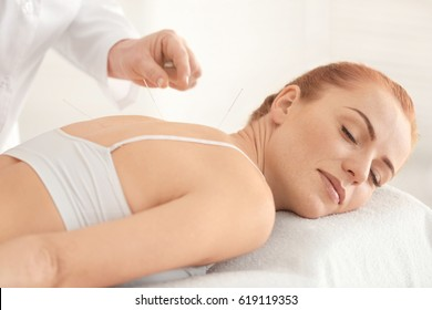 Therapy of female body with pricking acupuncture needles