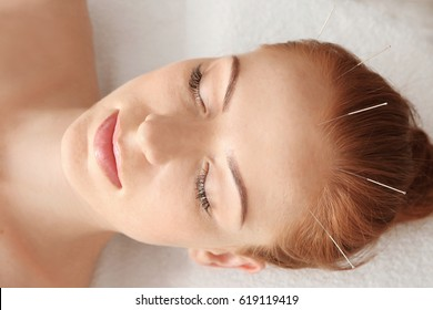 Therapy of female head with pricking acupuncture needles