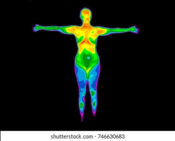 Thermographic image of front of whole body of a woman with the photo showing different temperatures in range of colors from blue showing cold to red showing hot which can indicate joint inflammation.