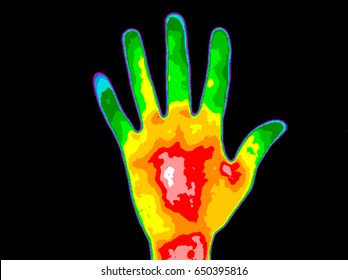 Thermographic image of persons hand palm showing different temperatures in range of colors, blue showing cold to red showing hot, this can indicate joint inflammation.  Red palm can indicate diabetes.