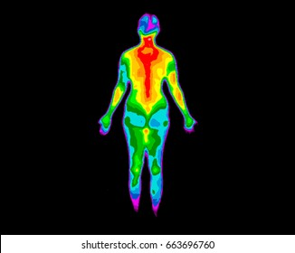 Thermographic photo of back of the whole body of a woman with photo showing different temperatures in a range of colors from blue showing cold to red showing hot which can indicate joint inflammation.