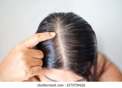 Thin hair problems that make women lack confidence.