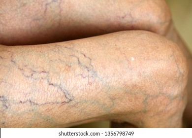 Thin skin, capillaries and leg veins.