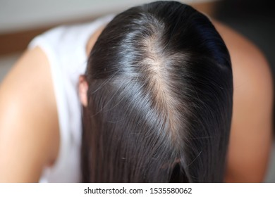 Hair Root Images, Stock Photos & Vectors | Shutterstock