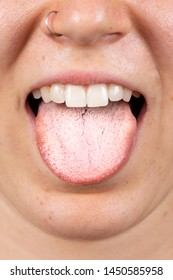 A thirty something Caucasian girl with pierced nose is seen up-close sticking her tongue out to reveal a thick white coating. A common sign of an oral thrush infection.