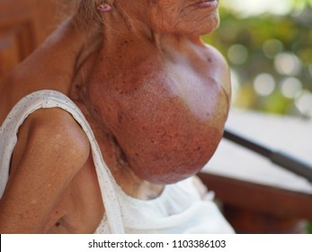 This is Goiter from old woman. It's around 45 years.Woman from Thailand.