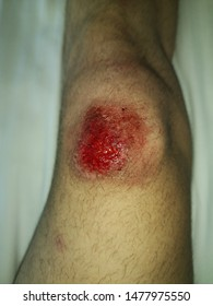 This may be the consequence of a football match on the synthetic field. Following a fall on the artificial grass, a severe knee injury resulted.