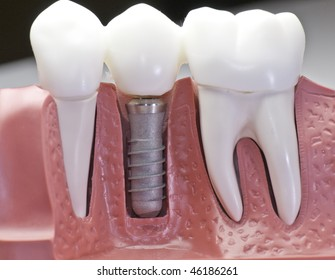 This model shows that teeth have been capped and the stainless pin in the gums.