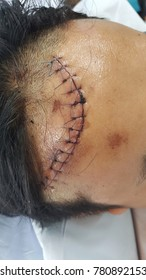 This is suture wound at head of laceration wound which suture by nylion suture about 13 stitches.