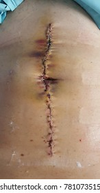 This is suture wound midline on abdomen which suture by staple about  24-25 stitches.