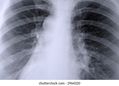Thorax X-ray of the lungs, medical concept