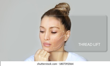 thread lift procedure ,non-surgical facelift,markup