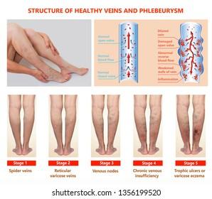 Thrombophlebitis. Deep Vein Thrombosis. Varicose veins. Phlebeurysm. Structure of normal veins and unhealthy vein