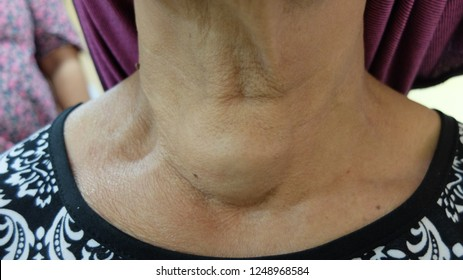 Thyroid swelling or known as Goitre. Presented as anterior neck swelling which moves with deglutition.