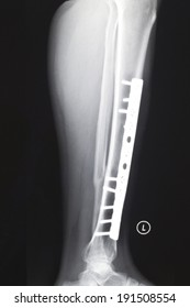 Tibial and fibular fracture, internal fixation with steel plate, X-ray film