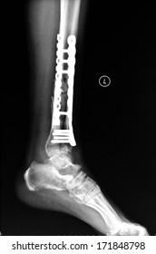Tibiofibula fracture fixation surgery, left lateral position X-ray pictures