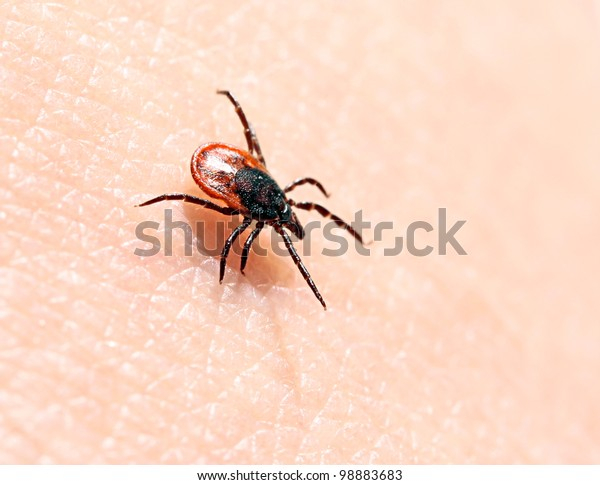 Ticks on human skin. Ixodes ricinus can transmit both bacterial and viral pathogens such as the causative agents of Lyme disease and tick-borne encephalitis.