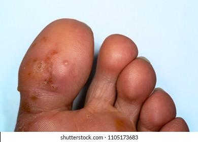 Tinea pedis, fungal infection. Athlete's foot .